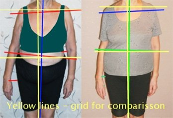 Before and after pictures of woman with scoliosis