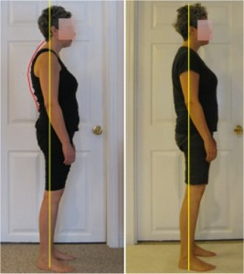 before-and-after-posture-pictures
